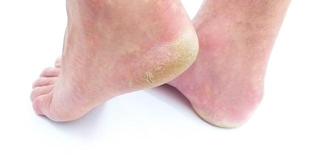 Grzybica stóp – przyczyny, objawy, leczenie